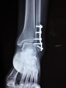 Röntgenbild einer Knöchelfaktur